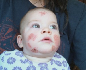Fiala's skin